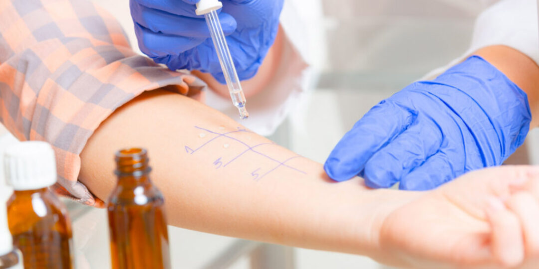 What-You-Need-to-Know-About-Allergy-Testing